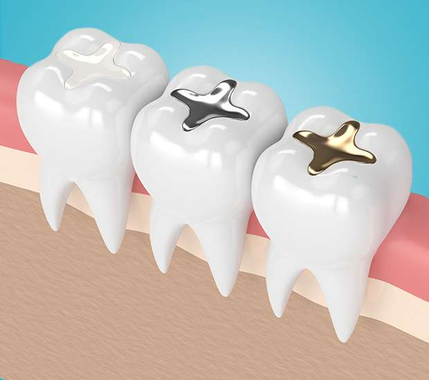 Huntersville Composite Fillings