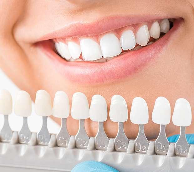Huntersville Cosmetic Dentist