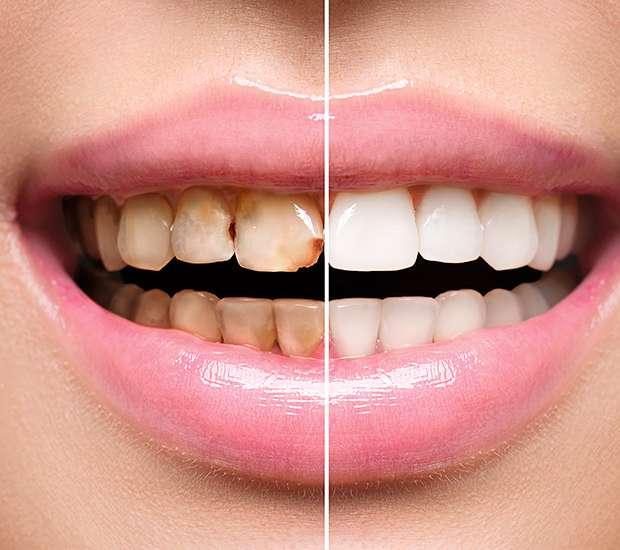 Huntersville Dental Implant Restoration