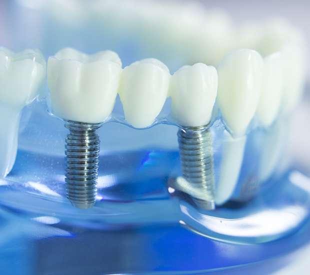 Huntersville Dental Implants
