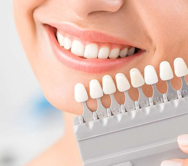 Huntersville Dental Veneers