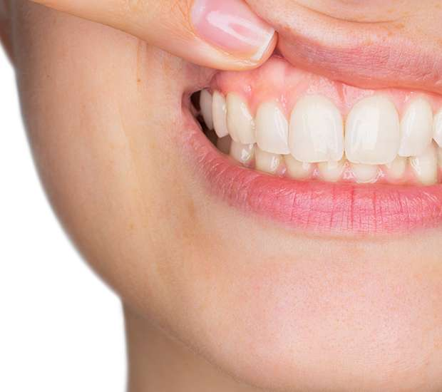 Huntersville Gum Disease