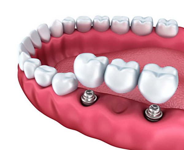implant supported dentures Huntersville, NC