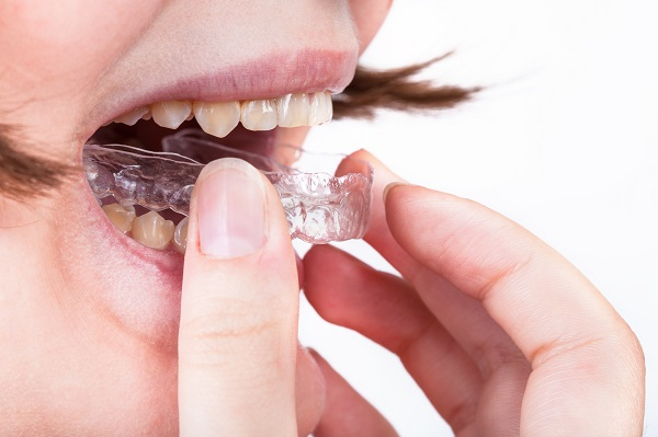 How To Prepare For Your Consultation With An Invisalign Dentist