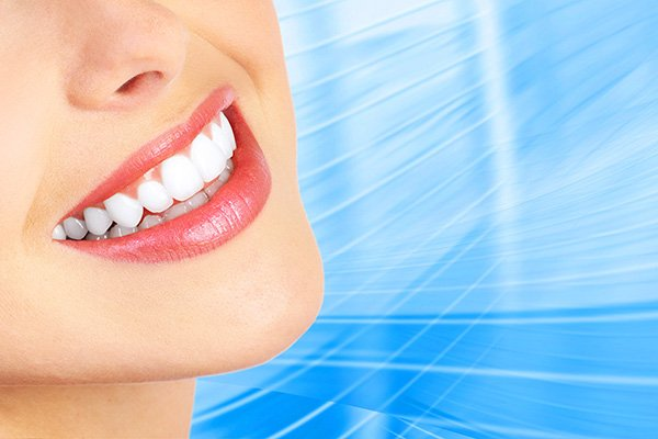 Factors To Consider Before A Smile Makeover