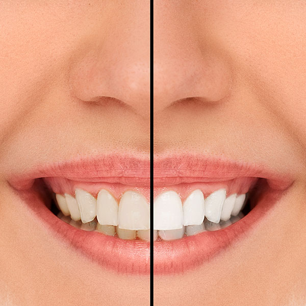 A Full Mouth Reconstruction Can Help Fix Your Smile