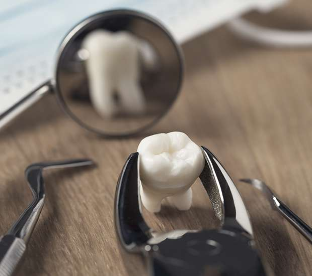 Huntersville When Is a Tooth Extraction Necessary